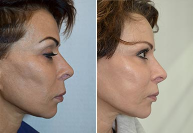 other patient before and after photo 1
