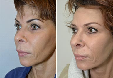 other patient before and after photo 3