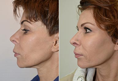 other patient before and after photo 5
