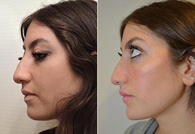 third patient before and after photo 4