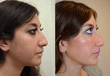 third patient before and after photo 5